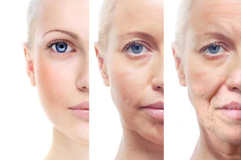 Evolución del efecto del envejecimiento sobre la piel