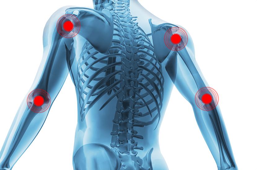 El dolor óseo es aquel que origina en los huesos
