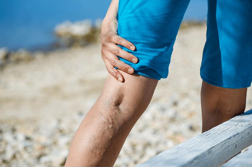 Las várices son venas que se inflaman en las piernas