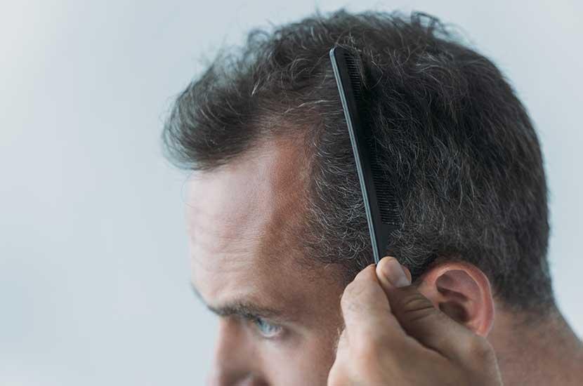 Vitahair Max puede ayudarte a tener un cabello más sano