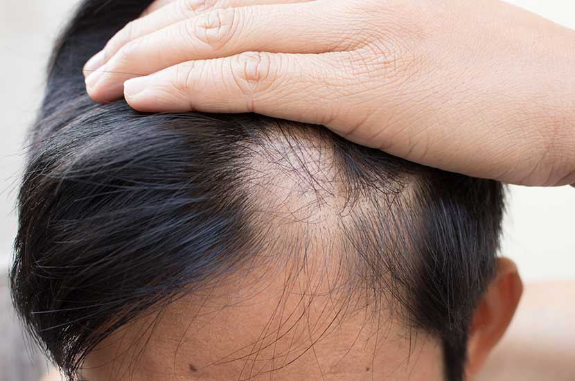 Existen muchas posibles causas de la caída del cabello