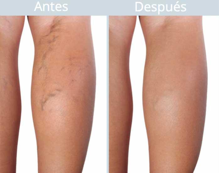 Picioare. tratamentul varicelor femeie prețul corpului