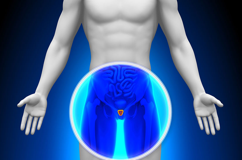 La hiperplasia prostática es una afección común en los hombres