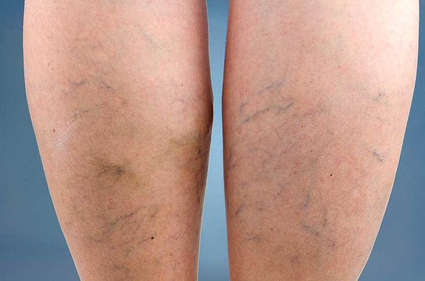 """Las várices se forman cuando la sangre de las piernas se """"estanca"""""""