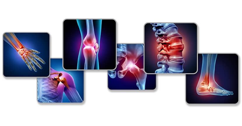 Consulta a tu médico si tienes dolores articulares recurrentes