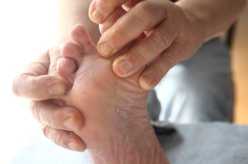El pie de atleta es una afección causada por hongos