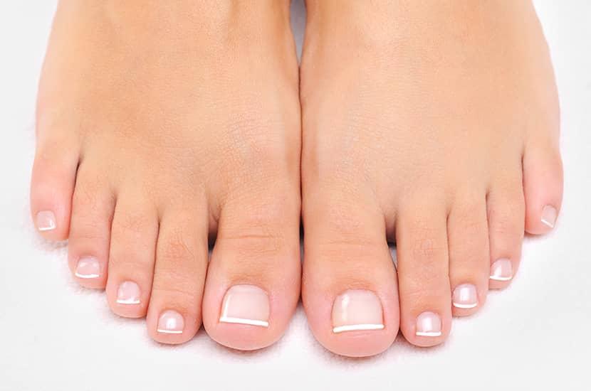 Fungalos puede mejorar el aspecto de tus pies