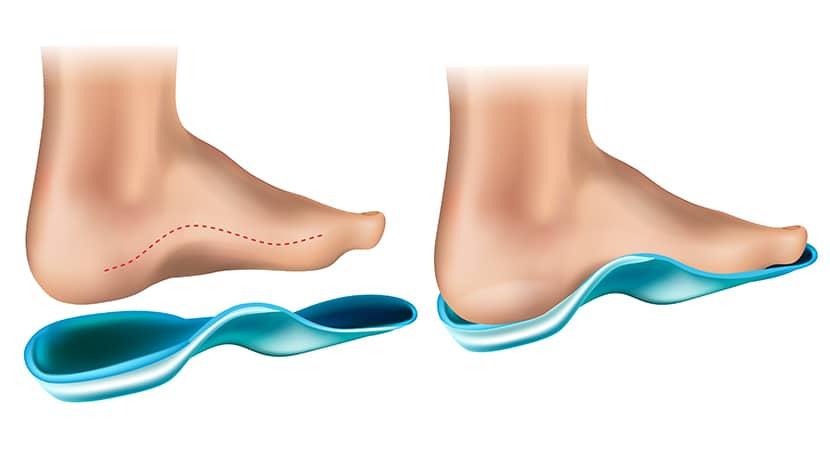 Puedes colocar las plantillas Promagnetin en cualquier tipo de calzado