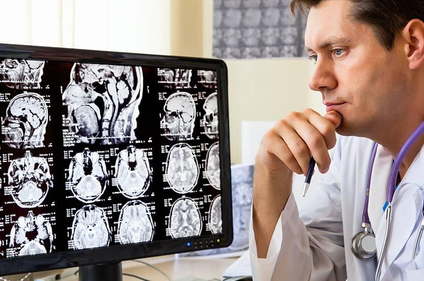 El tinnitus está relacionado con algún problema en el sistema auditivo o en el cerebro.