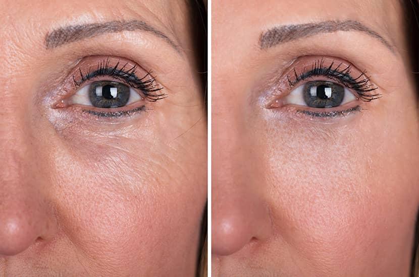 Distintos estudios demuestran que la estimulación mecánica puede mejorar la piel del rostro