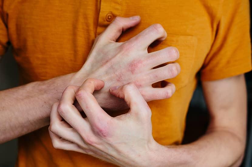 Psorilax puede ayudarte a aliviar los síntomas de psoriasis